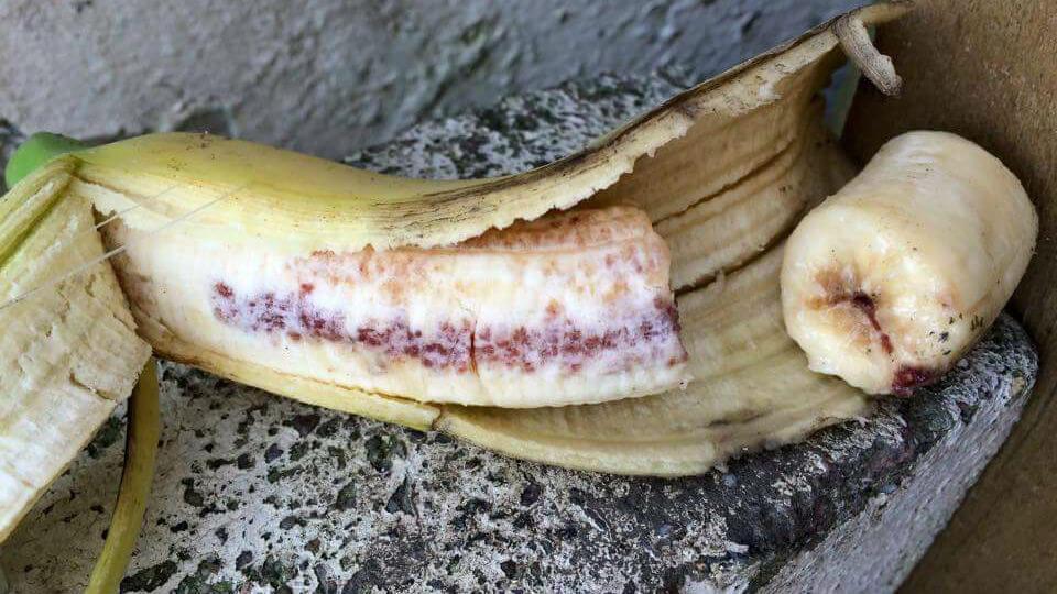 香蕉有愛滋血