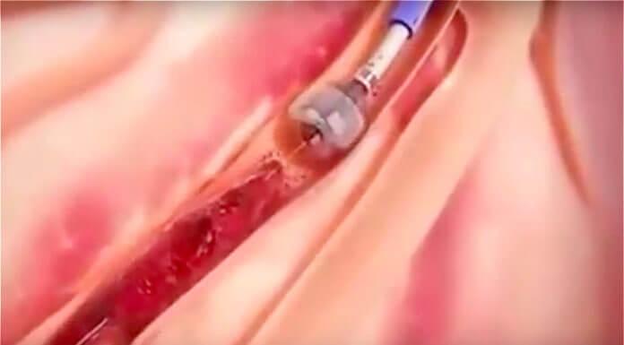 長庚醫院血管吸塵器是謠言。(圖/翻設自youtube影片)
